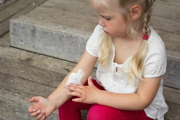 ecxzma treatment for kids